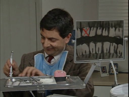 mr. bean la dentist ep5